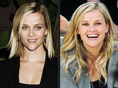 reese witherspoon surgery